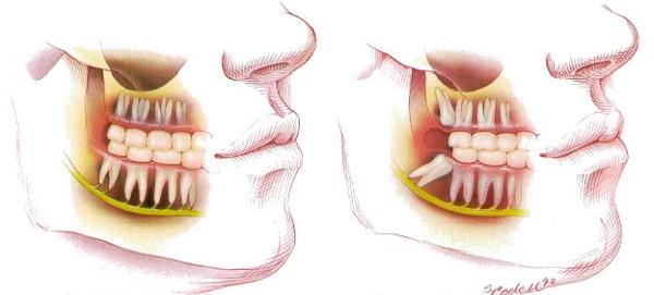 giá tiền nhổ răng khôn, chi phí nhổ răng khôn, nhổ răng khôn hàm dưới giá bao nhiêu, nhổ răng khôn giá bao nhiêu tiền, giá tiền nhổ răng khôn mọc lệch, nhổ răng khôn giá bao nhiêu, nhổ răng khôn giá tiền, nhổ răng khôn hàm trên giá bao nhiêu, nhổ răng khôn mọc lệch giá bao nhiêu, nhổ răng khôn bao nhiêu tiền, nhổ răng khôn mất bao nhiêu thời gian, giá nhổ răng khôn, địa chỉ nhổ răng khôn uy tín, nhổ răng khôn ở đâu an toàn, răng khôn mọc thẳng, răng khôn mọc ngầm, răng khôn mọc ngang, có nên nhổ răng khôn không, răng khôn mọc như thế nào, nhổ răng khôn bao nhiêu tiền benh vien rang ham mat, nhổ răng khôn bao nhiêu tiền tphcm, nhổ răng khôn hết bao nhiêu tiền, nhổ răng khôn mất bao nhiêu tiền, nhổ răng khôn tốn bao nhiêu tiền