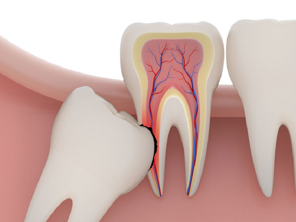 giá tiền nhổ răng khôn, chi phí nhổ răng khôn, nhổ răng khôn hàm dưới giá bao nhiêu, nhổ răng khôn giá bao nhiêu tiền, giá tiền nhổ răng khôn mọc lệch, nhổ răng khôn giá bao nhiêu, nhổ răng khôn giá tiền, nhổ răng khôn hàm trên giá bao nhiêu, nhổ răng khôn mọc lệch giá bao nhiêu, nhổ răng khôn bao nhiêu tiền, giá nhổ răng khôn, chi phí nhổ răng khôn giá bao nhiêu tiền