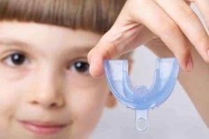 HÀM TRAINER | Đeo hàm niềng răng Silicon Trainer cho người lớn và trẻ nhỏ tại nhà có hiệu quả không?