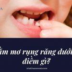 Nằm mơ rụng răng hàm dưới là điềm gì? Mơ răng rụng báo hiệu điều gì?