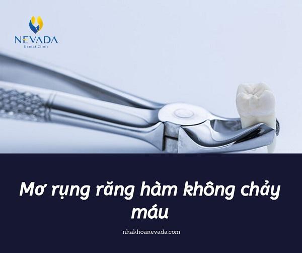 nằm mơ thấy rụng răng hàm dưới, nằm mơ rụng răng hàm dưới, nằm mơ dụng răng hàm dưới, mơ rụng răng hàm dưới không chảy máu, nằm mơ thấy nhổ răng hàm dưới, mơ thấy gãy răng hàm dưới, mơ thấy rụng răng hàm dưới, mơ rụng răng hàm dưới, nằm mơ thấy gãy răng hàm dưới, nằm mơ gãy răng hàm dưới, mơ rụng răng cửa hàm dưới, mơ bị rụng răng hàm dưới, mơ gãy răng hàm dưới, mơ bị gãy răng hàm dưới, ngủ mơ rụng răng hàm dưới, nằm mơ bị gãy răng hàm dưới, nằm mơ thấy rụng răng dưới, mơ thấy bị rụng răng hàm dưới, mơ ngủ gãy răng hàm dưới, nằm mơ thấy rụng răng hàm dưới không chảy máu, mơ thấy rụng răng cửa hàm dưới, mơ thấy nhổ răng hàm dưới, rụng răng hàm dưới, mơ gãy răng cửa hàm dưới, ngủ mơ thấy rụng răng hàm dưới, mơ ngủ gãy răng cửa hàm dưới, nằm mơ gãy răng dưới, nằm mơ rụng răng hàm dưới không chảy máu, mơ thấy rụng răng dưới, gãy răng hàm dưới