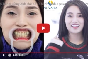 Ca sĩ Hồng Hạnh tự tin với nụ cười rạng rỡ sau khi bọc răng sứ tại Nevada