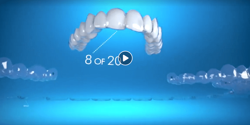 niềng răng invisalign, niềng răng invisalign có hiệu quả không, kinh nghiệm niềng răng invisalign, niềng răng invisalign có đau không, niềng răng invisalign là gì, niềng răng invisalign ở đâu tốt, niềng răng invisalign bao lâu, niềng răng invisalign giá