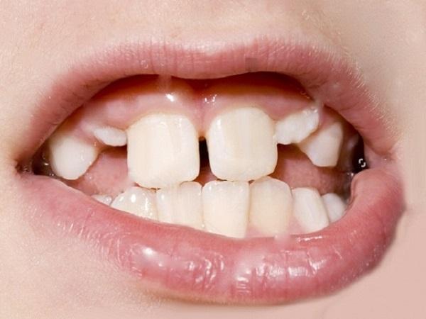 niềng răng silicon, niềng răng silicon cho người lớn, miếng niềng răng silicon, miếng niềng răng silicon cho người lớn có hiệu quả không