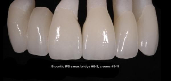 ưu nhược điểm của các loại răng sứ,các loại răng sứ,các loại răng,các loại răng sứ hiện nay,các loại răng sứ thẩm mỹ,ưu điểm của bọc răng sứ,ưu nhược điểm của các loại răng sứ,các loại răng sứ cao cấp,loại răng sứ nào tốt nhất hiện nay,các loại răng sứ tốt nhất,tuổi thọ răng sứ,có bao nhiêu loại răng sứ