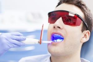 Tẩy trắng răng có ảnh hưởng gì không?