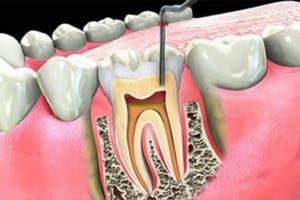 Cẩm nang y học: Nuốt phải thuốc diệt tủy răng có độc không | Kiến thức về thuốc diệt tủy răng