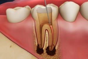 Cách chữa viêm tủy răng tại nhà? Chia sẻ đơn thuốc kháng sinh điều trị viêm tủy răng