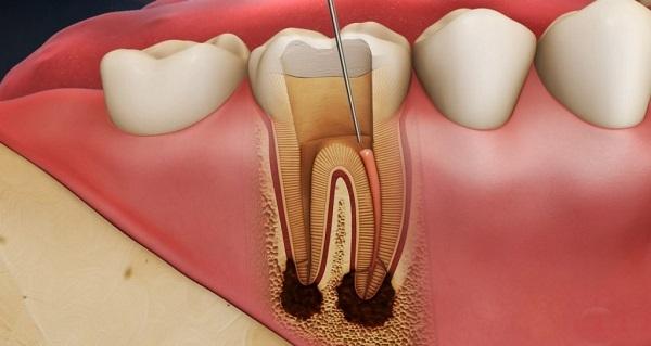viêm tủy răng,viêm tuỷ răng phải làm sao,cách chữa viêm tủy răng tại nhà,thuốc kháng sinh điều trị viêm tủy răng,trị viêm tủy răng tại nhà,viêm tủy răng có mủ,chữa viêm tủy răng xong vẫn đau nhức,bị viêm tủy răng uống thuốc gì,viêm tủy răng mãn tính,viêm tủy răng là gì,bệnh viêm tủy răng,triệu chứng viêm tủy răng,viêm tủy răng có nguy hiểm không