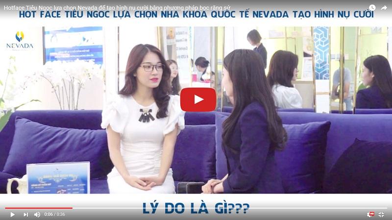 otface Tiêu Ngọc chia sẻ về quá trình tẩy trắng răng an toàn bằng công nghệ cao tại Nha khoa Quốc tế Nevada