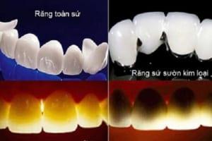 So sánh các dòng răng sứ HOT nhất hiện nay