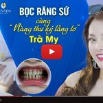Hành trình bọc răng sứ của khách hàng Trà My tại nha khoa Nevada