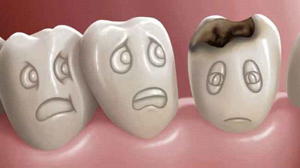bệnh răng miệng,bệnh răng miệng ở trẻ em,bệnh răng miệng thường gặp,các bệnh răng miệng thường gặp,chữa bệnh răng miệng,nguyên nhân gây bệnh răng miệng,tình hình bệnh răng miệng ở việt nam,các bệnh răng miệng thường gặp ở trẻ,các bệnh răng miệng nguy hiểm,các bệnh răng miệng thường gặp ở trẻ em