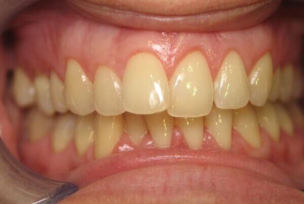 Bọc răng sứ có đau không? có nguy hiểm gì không