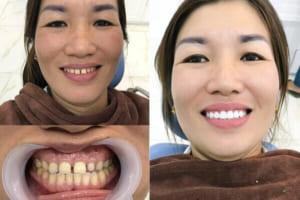 Bọc răng sứ có ĐAU không? Có gây nguy hiểm gì không?