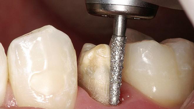 bọc răng sứ có phải mài răng không