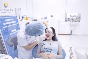 Tháo răng sứ có đau không? Cách tháo răng sứ làm lại không đau tại nha khoa Nevada