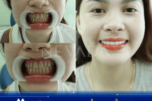 Công nghệ phủ răng sứ Invy Ultra 3P | Khám phá đẳng cấp công nghệ Mỹ