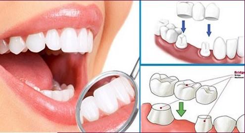 Bọc răng sứ bao nhiêu tiền một chiếc, Bọc răng sứ bao nhiêu tiền 1 chiếc, bọc răng sứ bao nhiêu tiền, giá bọc răng sứ bao nhiêu tiền, giá bọc răng sứ bao nhiêu tiền một chiếc, chi phí bọc răng sứ trọn gói, bọc răng sứ giá bao nhiêu, bọc răng sứ giá bao nhiêu 1 chiếc, làm răng sứ bao nhiêu tiền, răng sứ bao nhiêu tiền, bọc răng sứ 1 chiếc, răng bọc sứ bao nhiêu tiền, thay răng sứ bao nhiêu tiền, răng sứ bao nhiêu tiền một chiếc, chi phí bọc răng, bọc răng sứ giá bao nhiêu tiền, bọc răng sứ thẩm mỹ giá bao nhiêu, chi phí bọc răng sứ, bọc răng sứ bao nhiêu, giá 1 chiếc răng sứ