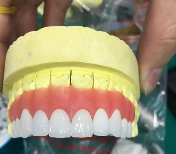 bọc răng sứ không kim loại, các loại răng sứ không kim loại, răng sứ không kim loại cercon,răng sứ không kim loại zirconia, răng sứ không kim loại venus, răng sứ không kim loại, bọc răng sứ không kim loại giá bao nhiêu, giá răng sứ không kim loại, răng sứ kim loại và răng toàn sứ, răng sứ không kim loại giá bao nhiêu, răng sứ không kim loại giá bao nhiêu