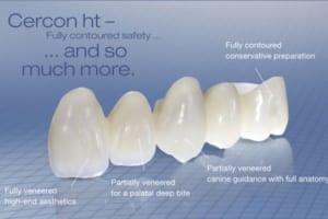 Bọc răng sứ không kim loại ở đâu tốt nhất | Ưu đãi 50% các loại răng sứ