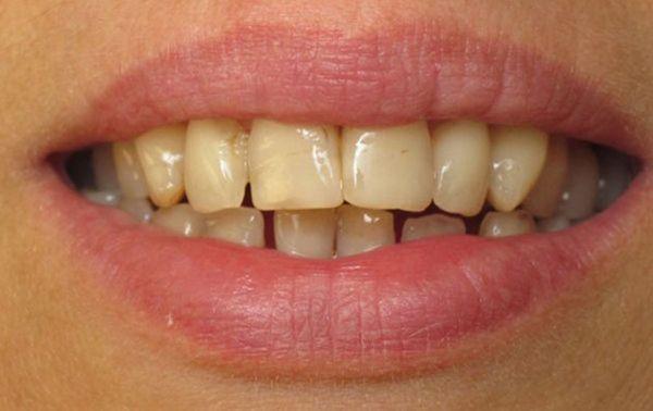 chữa đau răng bằng lá lốt, lá lốt chữa đau răng, cách trị đau răng bằng lá lốt, cách chữa đau răng bằng lá lốt, trị đau răng bằng lá lốt, lá lốt trị đau răng, tác dụng của lá lốt chữa đau răng, cách chữa sâu răng bằng lá lốt, cách sắc lá lốt chữa đau răng, ngậm lá lốt chữa đau răng, lá lốt trị sâu răng, trị sâu răng bằng lá lốt, bài thuốc chữa đau răng bằng lá lốt, nước lá lốt chữa đau răng, la lot chua dau rang, chua dau rang bang la lot, lá lốt chữa sâu răng, lá lốt chữa đau răng như thế nào, cách chữa nhức răng bằng lá lốt, cách chữa sâu răng dân gian, chữa sâu răng bằng lá lốt, cách trị sâu răng bằng lá lốt, trị nhức răng bằng lá lốt, lá lốt trị nhức răng, chữa đau răng bằng cây lá lốt, cách dùng lá lốt chữa đau răng, chữa nhức răng bằng lá lốt, cách trị nhức răng bằng lá lốt, rễ lá lốt chữa đau răng