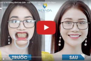 Hot girl Cẩm Ngọc tự tin khẳng định bản thân sau khi bọc răng sứ tại Nha khoa Quốc tế Nevada