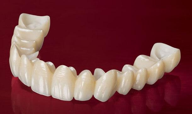 giá bọc răng sứ,bọc răng sứ bao nhiêu tiền một chiếc,giá bọc răng sứ thẩm mỹ,bảng giá bọc răng sứ thẩm mỹ,giá các loại răng sứ hiện nay,bọc răng sứ giá bao nhiêu,trồng răng sứ bao nhiêu tiền,bọc răng sứ bao nhiêu tiền 1 chiếc,bọc răng sứ hết bao nhiêu tiền,trồng răng sứ hết bao nhiêu tiền,giá chụp răng sứ,bọc răng sứ 1 chiếc,làm răng sứ bao nhiêu tiền,răng sứ bao nhiêu tiền,bọc răng sứ bao nhiêu,bọc răng sứ mất bao nhiêu tiền,giá tiền bọc răng sứ,răng bọc sứ giá bao nhiêu
