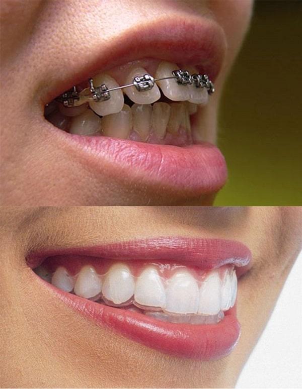Niềng răng mắc cài kim loại giá bao nhiêu, niềng răng mắc cài kim loại bao nhiêu tiền, niềng răng bằng mắc cài kim loại giá bao nhiêu, niềng răng mắc cài kim loại thường giá bao nhiêu, bảng giá niềng răng mắc cài kim loại, giá niềng răng mắc cài kim loại thường,chi phí niềng răng mắc cài kim loại
