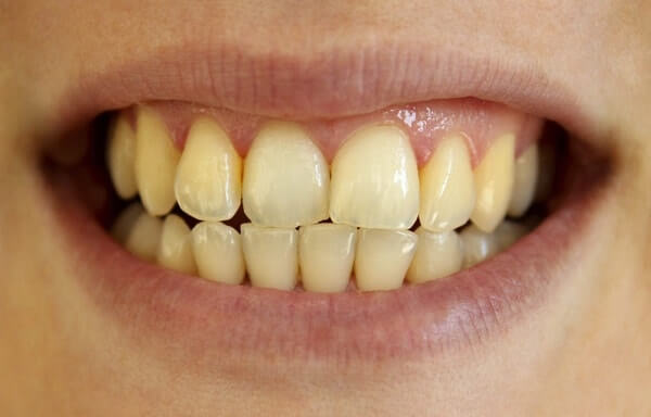các mức độ sâu răng