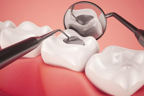 các mức độ sâu răng,các giai đoạn sâu răng, lỗ sâu răng nhỏ