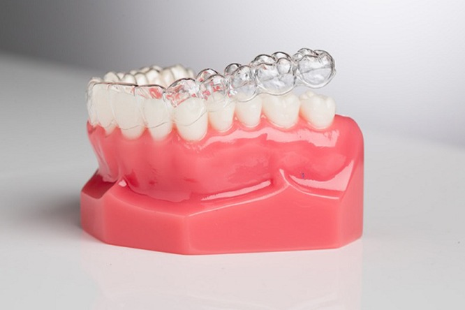 niềng răng invisalign, niềng răng invisalign có hiệu quả không, kinh nghiệm niềng răng invisalign, niềng răng invisalign có đau không, niềng răng invisalign là gì, niềng răng invisalign ở đâu tốt, niềng răng invisalign bao lâu, niềng răng invisalign giá, niềng răng invisalign bao nhiêu tiền, giá niềng răng invisalign