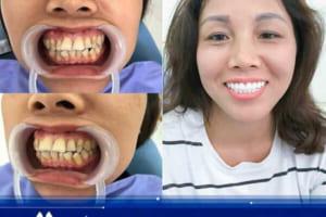 Khi nào nên bọc răng sứ ? Những trường hợp chọn bọc răng là chuẩn