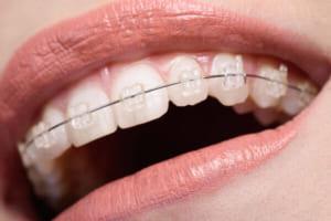 Sau khi niềng răng có đau không?  Sự thật về niềng răng trong nha khoa