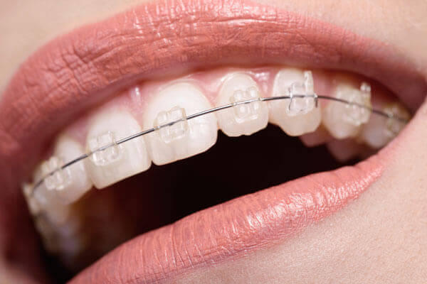 niềng răng có đau không, khi niềng răng có đau không, niềng răng có đau không webtretho, lúc niềng răng có đau không, mới niềng răng có đau không, sau khi niềng răng có đau không