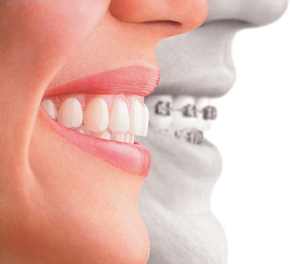 niềng răng không mắc cài giá bao nhiêu, niềng răng không mắc cài bao nhiêu tiền, giá của niềng răng không mắc cài, niềng răng không mắc cài invisalign gia bao nhieu, chỉnh nha không mắc cài giá bao nhiêu, chi phí niềng răng không mắc cài invisalign, niềng răng không mắc cài invisalign giá, niềng răng không mắc cài giá bao nhiêu tiền, niềng răng không mắc cài giá rẻ, niềng răng không mắc cài 1 hàm giá bao nhiêu, niềng răng không mắc cài hết bao nhiêu tiền, bảng giá niềng răng không mắc cài, giá niềng răng không mắc cài, niềng răng không mắc cài giá, chi phí niềng răng không mắc cài