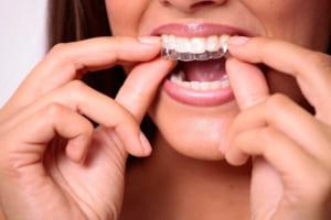 Niềng răng không mắc cài giá bao nhiêu tiền? Niềng răng công nghệ mới