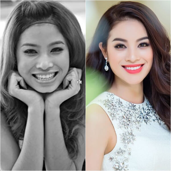 niềng răng làm thay đổi khuôn mặt, lột xác sau khi niềng răng, khuôn mặt trước và sau khi niềng răng, niềng răng thay đổi góc nghiêng, niềng răng thay đổi khuôn mặt như thế nào, niềng răng có làm thay đổi khuôn mặt không, niềng răng có thay đổi khuôn mặt không, thay đổi sau niềng răng, niềng răng có thay đổi khuôn mặt, niềng răng hô có làm thay đổi khuôn mặt, khuôn mặt thay đổi sau khi niềng răng, thay đổi sau khi niềng răng, niềng răng thay đổi xương hàm, sự thay đổi sau khi niềng răng, niềng răng có làm mặt nhỏ lại, niềng răng thay đổi như thế nào, niềng răng thay đổi, niềng răng có thay đổi xương hàm, thay đổi khi niềng răng, góc nghiêng trước và sau khi niềng răng, niềng răng trước và sau, niềng răng làm mặt dài ra, niềng răng giúp mặt thon gọn, niềng răng làm nhỏ mặt, niềng răng có giúp mặt thon gọn, thay đổi nhờ niềng răng, sự thay đổi khi niềng răng, niềng răng giúp thay đổi khuôn mặt, nieng rang co thay doi khuon mat ko, niềng răng thay đổi khuôn hàm, truoc va sau khi nieng rang, quá trình thay đổi khi niềng răng, nieng rang truoc va sau