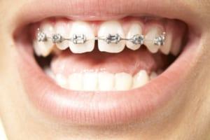 Niềng răng mắc cài kim loại giá bao nhiêu tiền 2019 tại Nha khoa Nevada