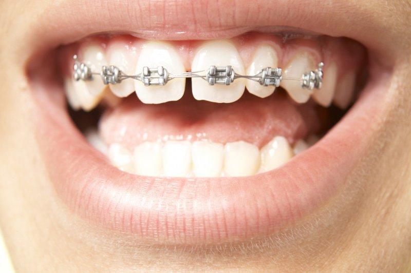 Niềng răng mắc cà i kim loại giá bao nhiêu