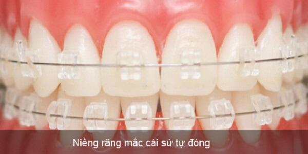 giá niềng răng mắc cài,giá niềng răng mắc cái sứ và kim loại,giá niềng răng rẻ nhất,niềng răng mắc cài tự buộc,giá niềng răng mắc cài sứ,niềng răng mắc cài sứ giá bao nhiêu giá niềng răng mắc cài sứ dây trong,niềng răng sứ bao nhiêu tiền,chi phí niềng răng mắc cài sứ,niềng răng sứ giá bao nhiêu,niềng răng mắc cài sứ dây trong giá bao nhiêu,niềng răng mắc cài sứ bao nhiêu tiền,niềng răng mắc cài sứ bao nhiêu