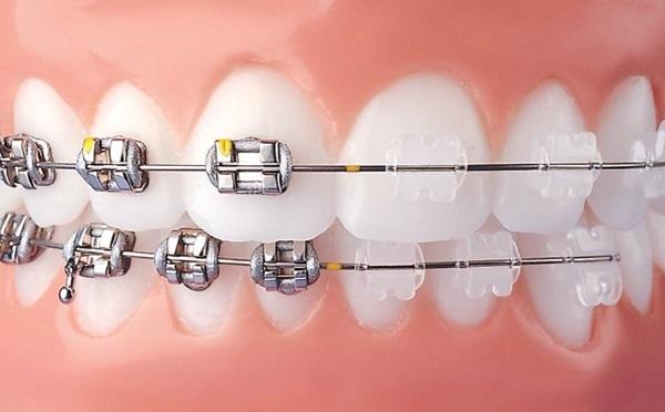 Niềng răng mắc cài sứ có hiệu quả không, niềng răng mắc cài sứ có tốt không