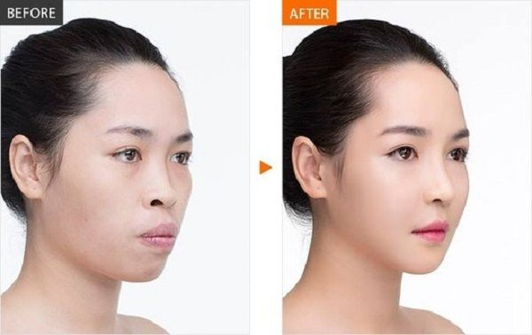 niềng răng có là m thay đổi khuôn mặt,niềng răng thay đổi khuôn mặt,niềng răng có thay đổi khuôn mặt,khuôn mặt trước và sau khi niềng răng hô,niềng răng là m thay đổi khuôn mặt,lột xác nhờ niềng răng,niềng răng thay đổi khuôn mặt như thế nà o,khuôn mặt trước và sau khi niềng răng,niềng răng có là m thay đổi khuôn mặt không,sự thay đổi sau khi niềng răng,khuôn mặt thay đổi sau khi niềng răng,niềng răng v line,niềng răng thay đổi góc nghiêng,niềng răng giúp thay đổi khuôn mặt,niềng răng thay đổi khuôn hà m,niềng răng có thay đổi khuôn mặt không,niềng răng giúp mặt thon gọn,nhổ răng là m nhỏ mặt,thay đổi sau khi niềng răng,góc nghiêng trước và sau khi niềng răng,niềng răng có là m mặt nhỏ lại,niềng răng mặt có nhỏ lại không,niềng răng có thay đổi số phận,khuôn răng,niềng răng thay đổi như thế nà o,niềng răng có giúp mặt cân đối,niềng răng là m mặt nhỏ,tại sao khuôn mặt không cân đối,bị móm có niềng răng được không,niềng răng trước và sau, niềng răng thay đổi góc nghiêng