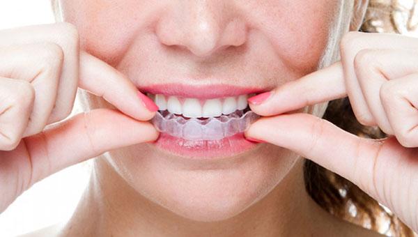 niềng răng trong suốt giá bao nhiêu,niềng răng trong suốt bao nhiêu tiền,niềng răng trong suốt giá rẻ,nẹp răng trong suốt,niềng răng trong suốt bao lâu