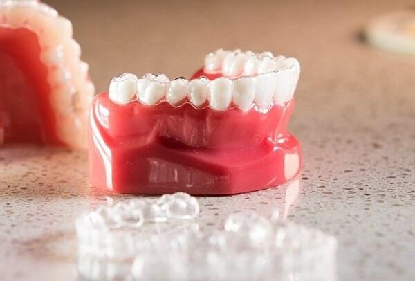 niềng răng trong,niềng răng khay trong,đeo niềng răng trong bao lâu,niềng răng trong suốt,niềng răng mắc cài trong suốt,niềng răng trong suốt invisalign,niềng răng trong suốt có tốt không,niềng răng trong suốt mất bao lâu,niềng răng trong suốt giá rẻ,chi phí niềng răng trong suốt,niềng răng trong suốt bao nhiêu tiền,niềng răng trong suốt bao nhiêu,nẹp răng trong suốt giá bao nhiêu