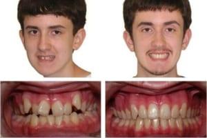Niềng răng và bọc sứ – phương pháp nào tối ưu cho răng khấp khểnh
