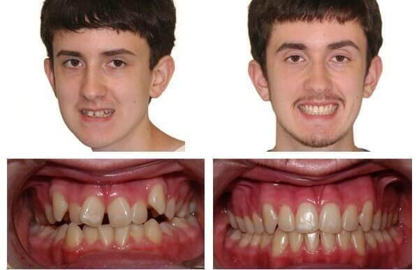 niềng răng và bọc sứ