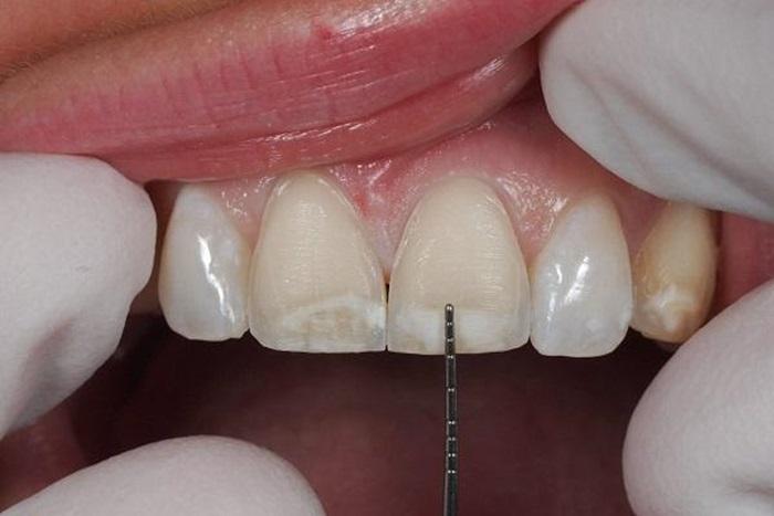 phủ răng sứ