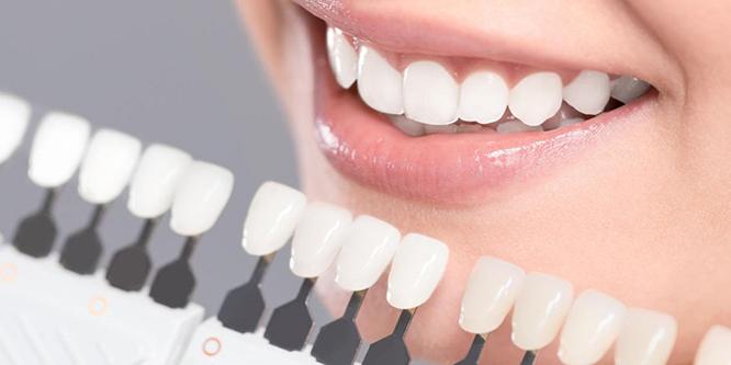 Quy trình dán sứ Veneer ,phương pháp dán sứ Veneer, quy trình dán răng sứ veneer, quy trình gắn veneer, quy trình bọc răng sứ veneer, quy trình làm răng veneer, quy trình phủ sứ veneer