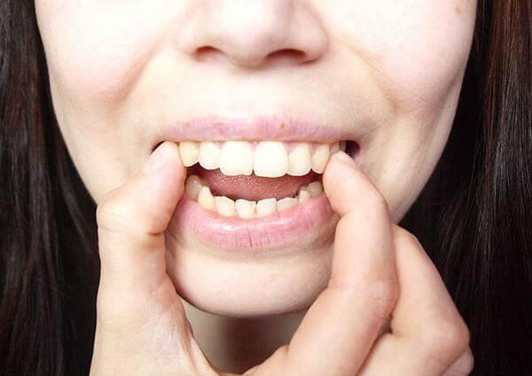 Quy trình dán răng sứ veneer, Quy trình dán sứ Veneer ,phương pháp dán sứ Veneer, quy trình gắn veneer, quy trình bọc răng sứ veneer, quy trình làm răng veneer, quy trình phủ sứ veneer